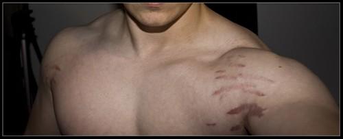 Người tập thể hình phải làm sao khi rạn da, nứt da